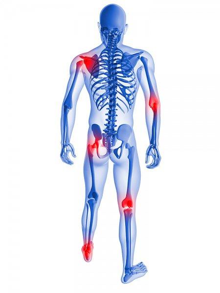 Лечение заболеваний суставов озонотерапией