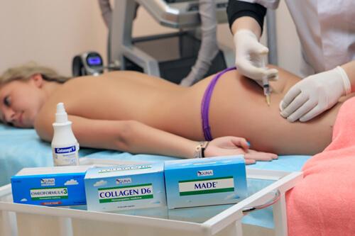Процедура лечение целлюлита озоном в Центре Динос