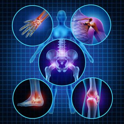 """Как вылечить ревматоидный артрит? Специалисты из центра """"Динос"""" знают ответ. Отзывы, фото (Киев)"""