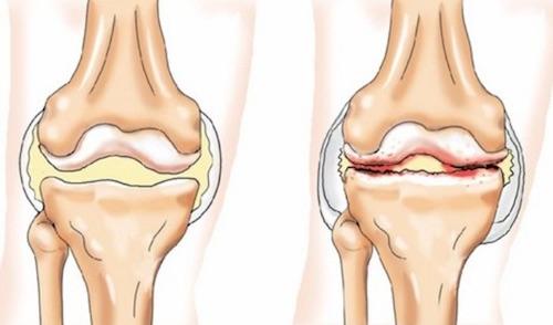 Лечение позвоночника и суставов в хронической форме