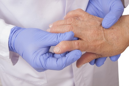 """Современные методы лечения ревматоидного артрита. Лечение ревматоидного артрита в медцентре """"Динос"""""""
