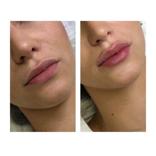 контурная пластика губ киев