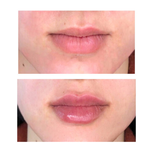 контурная пластика губ медцентр